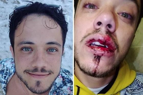 https://www.guiagaysalvador.com.br/public/uploads/imagens/originais/danilo_matta_brasileiro_gay_atacado_agredido_homofobia_irlanda_dublin.jpg